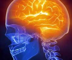 brain17