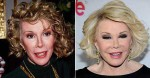 joan-rivers-befor-after-plastic
