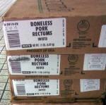 rectum26